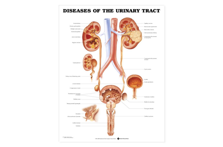 Močový trakt - ochorenia 50,8x66cm