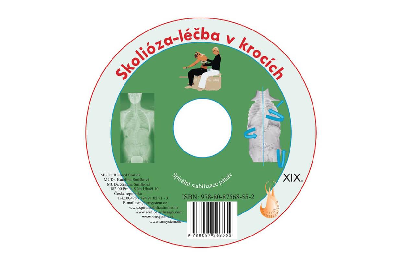 CD Skolióza - liečba v krokoch