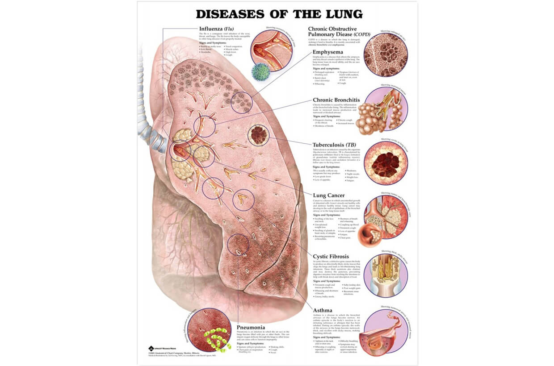 Pľúcny lalok - ochorenia 50,8x66cm