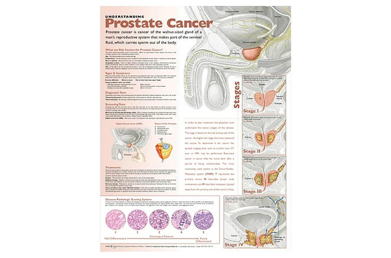 Rakovina prostaty 50,8x66cm
