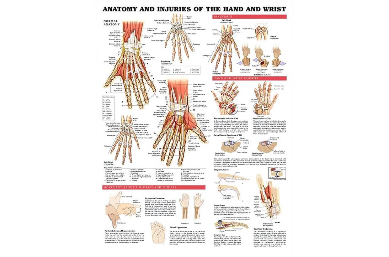 Zranenia ruky a zápästia 50,8x66cm