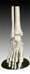 Životná veľkosť kĺbu nohy