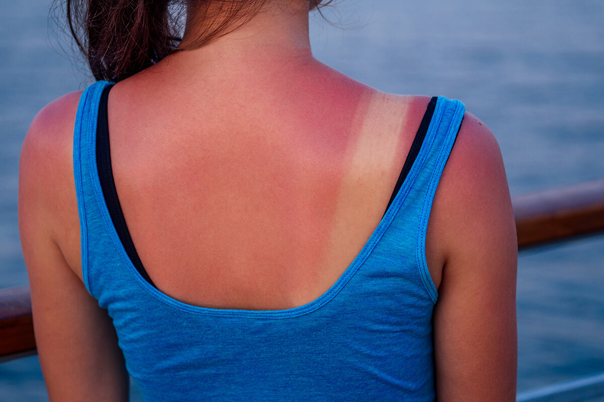 Koža čerstvo spálená od slnka – nemasírovať