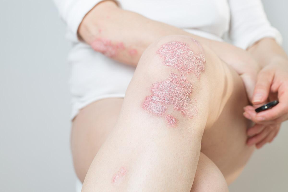 Psoriáza – lupienka na pokožke